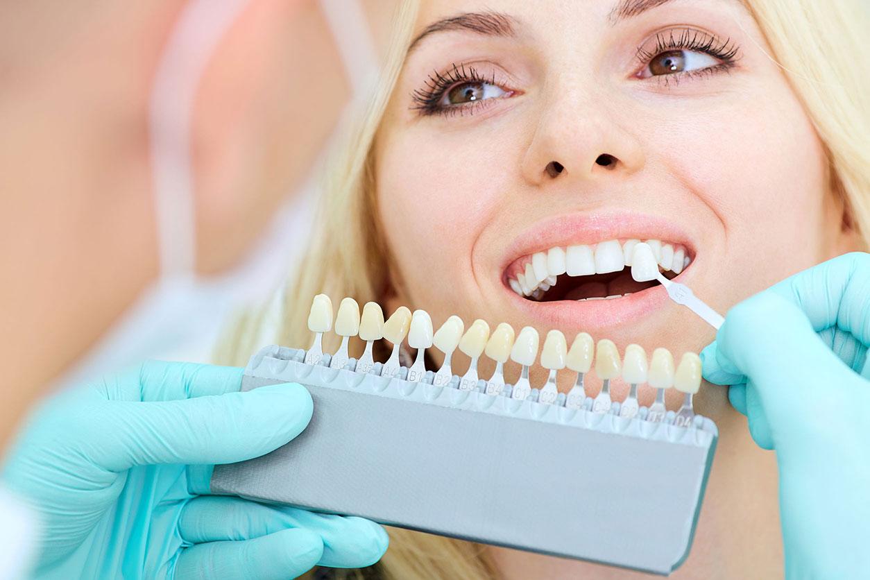 Prothèse dentaire : quels sont les principaux types ?