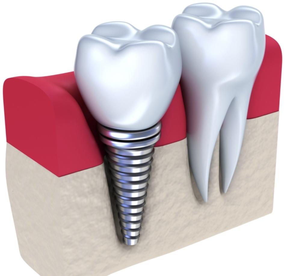 Implant dentaire : combien ça coûte ?